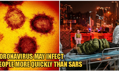 Researchers: Coronavirus May Be 20 Times More Likely To Bind To Human Cells Than SARS - WORLD OF BUZZ 4