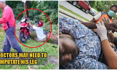 Selayang Snatch Thief Gets Instant Karma, Loses His Leg After Snatching Woman's Handbag - WORLD OF BUZZ 3