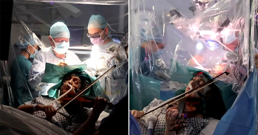 53yo Woman With Brain Tumour Plays Violin During Surgery to Prevent Damage to Motor Skills - WORLD OF BUZZ