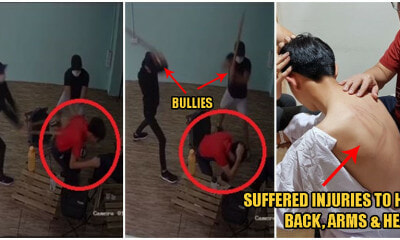 17yo Johor Boy Gets Beaten Up By Bullies For 'Offending' School Seniors, Hospitalised With Back Injuries - WORLD OF BUZZ 5