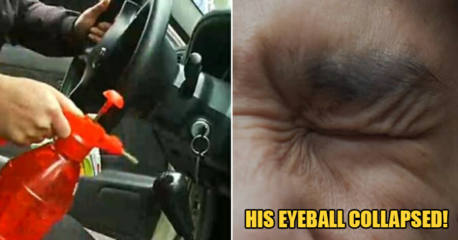 Man Uses Pressurized Water Can With 75% Alcohol to Disinfect Car, Suffers Severe Eyeball Injury - WORLD OF BUZZ