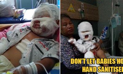 3yo Girl Suffers Burns On Body After Holding Hand Sanitiser Bottle Near An Open Flame - WORLD OF BUZZ
