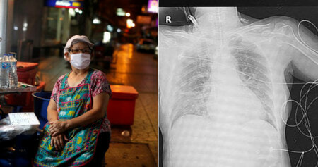 Thai Woman Ends Up in ICU After Her Daughter Didn't Self-Quarantine Af - WORLD OF BUZZ